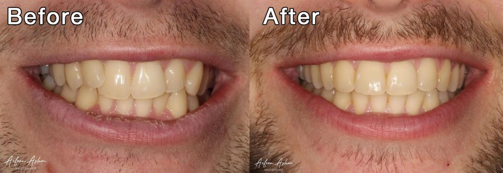 Before and After Invisalign 2