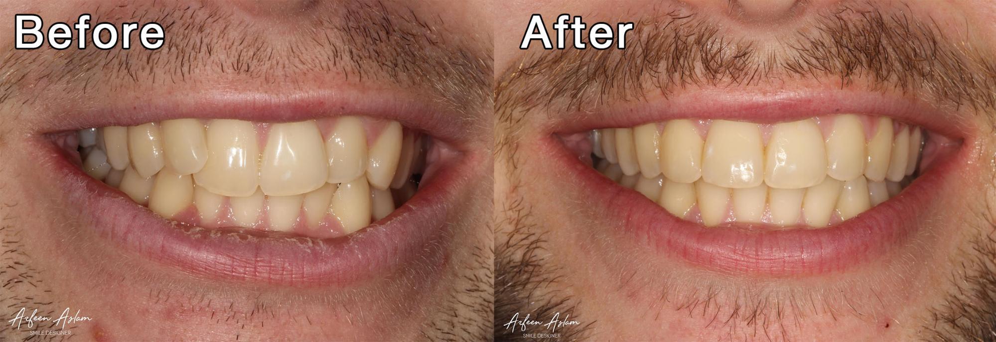 Invisalign® Manchester City Centre | Vallance Dental Centre