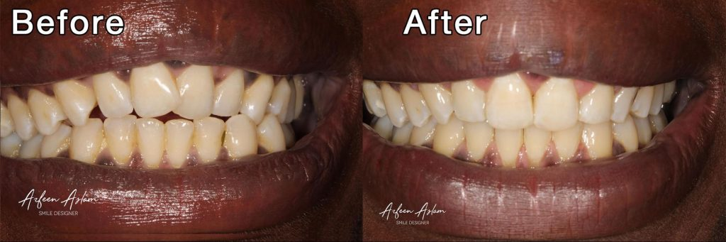 Before and After Invisalign