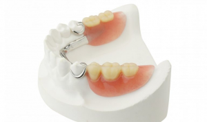 Cobalt Chrome Dentures 1