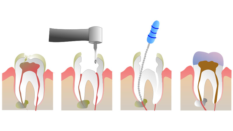 Endodontic Treatment